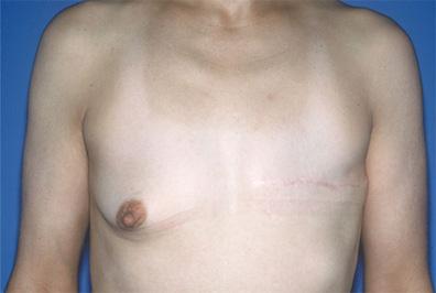 breastrecon1a