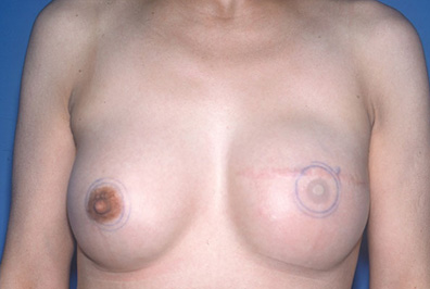 breastrecon1b
