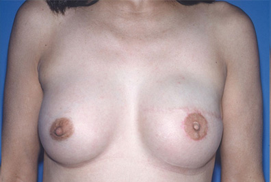 breastrecon1c