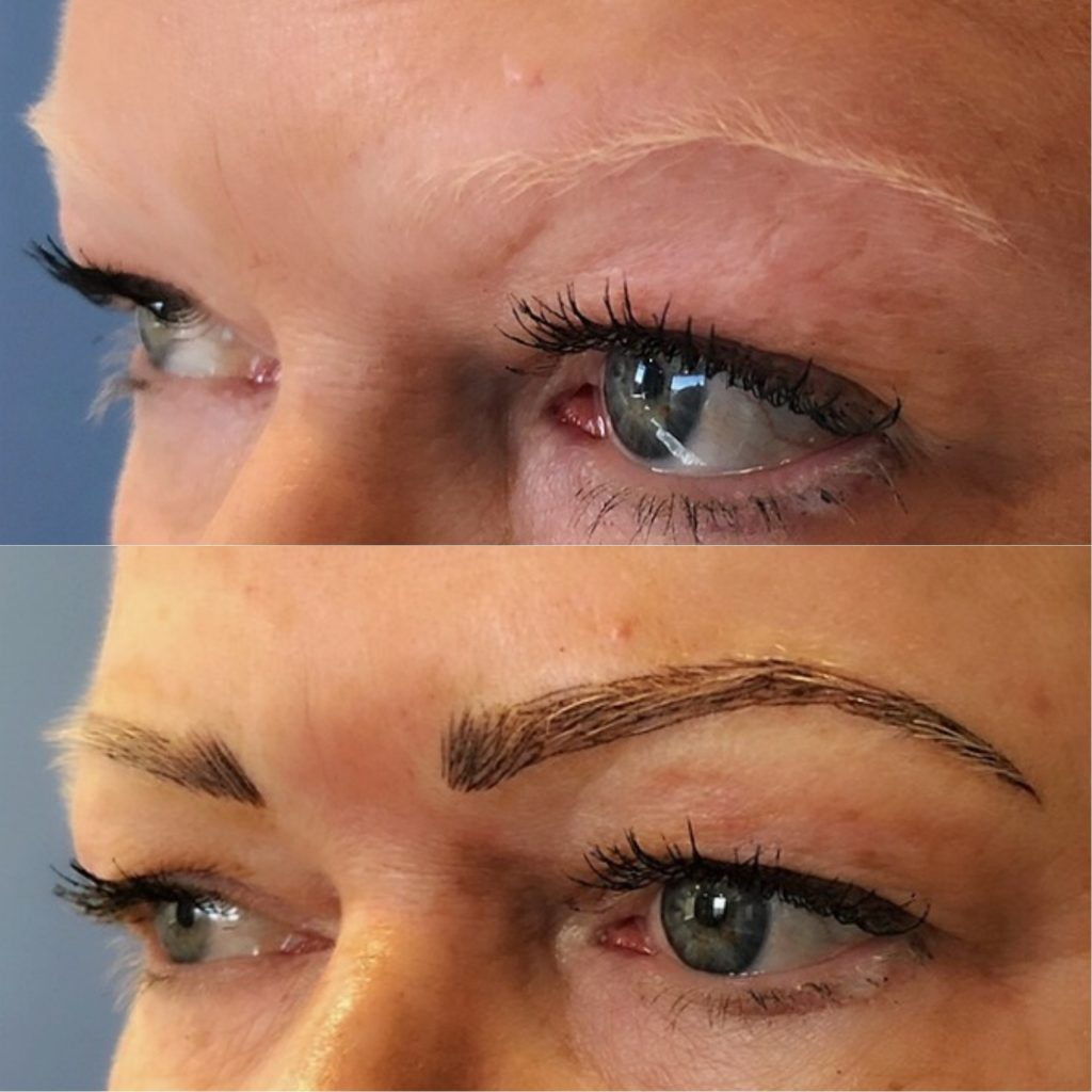 Patient 1 before and after first microblading session.