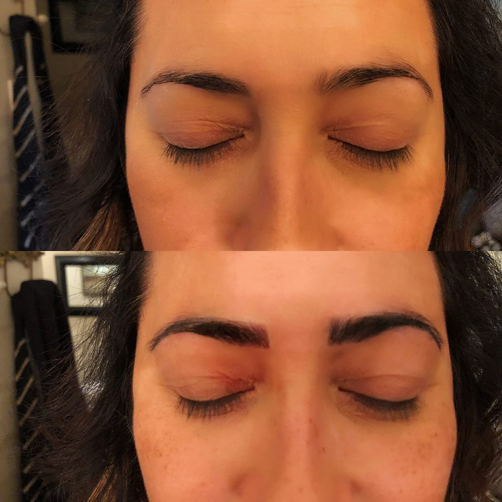 Patient 3 before and after first microblading session.