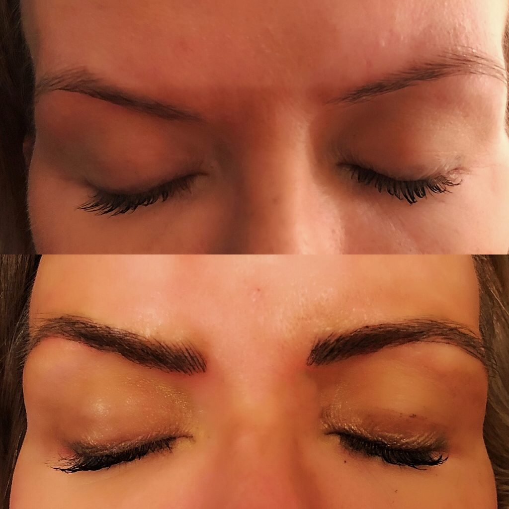 Patient 4 after 5-week touch-up.